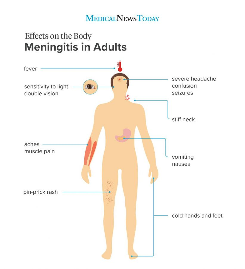 Meningitis side effects in adults. Photo retrieved from Medical News Today.